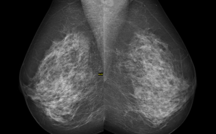 Life Medical Technologies on Digital Mammogram Technologies